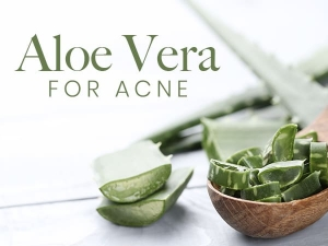 Aloe Vera For Acne 7 Homemade Remedies To Treat The Issue