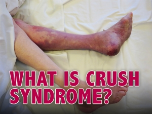 Crush Syndrome Causes Symptoms Complications Diagnosis Management