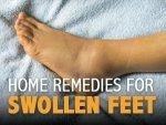 Effective Home Remedies For Swollen Feet