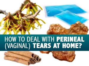 Safe And Effective Ways To Deal With Perineal Tears
