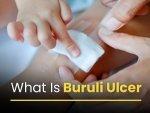 What Is Buruli Ulcer Causes Symptoms Risk Factors Complications Treatments