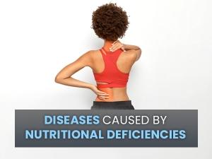 Diseases Caused By Nutritional Deficiencies