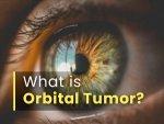 Neurosurgeon Explains Orbital Tumor Diagnosis Treatment Management