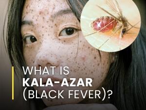 Kala Azar Black Fever Causes Symptoms Risk Factors Treatments Prevention