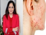 Exclusive Cosmetologist Everything About Acne Types Causes Symtoms Treatment