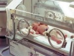 Queens University Belfast Trial Improves Results For Critically Ill Children On Mechanical Ventilati