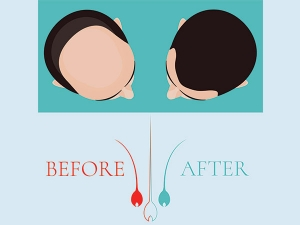 How Garlic Can Treat Hair Loss?