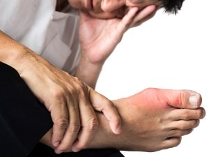 Best Ayurvedic Herbs To Cure Gout