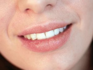 Have Rashes On Your Upper Lip?