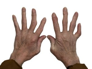 Miracle Cure For Arthritis