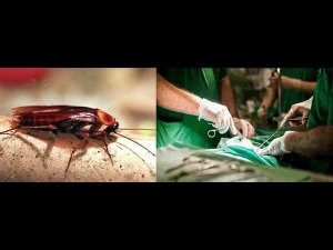 WTF! 26 Cockroaches Found In A Man's Ear