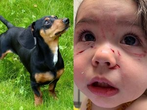 Mum Shares Heartbreaking Pictures Of Baby After Dog Attack