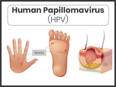 human papillomavirus hpv cure