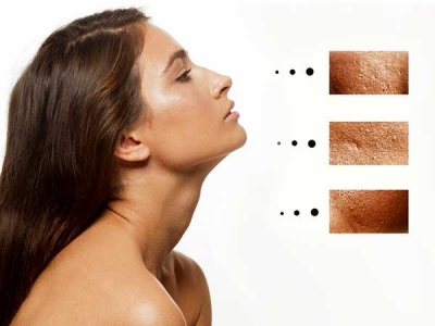 How To Shrink Large Pores Naturally