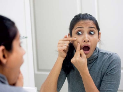 How To Get Rid Of Pimples With Toothpaste?