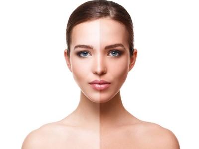 DIY Remedies For Fair Skin