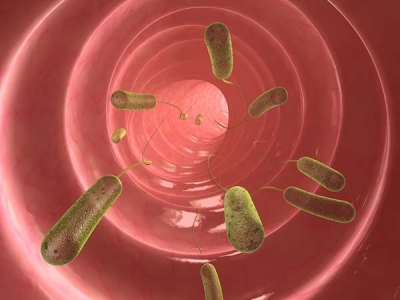 What Is Ascariasis?