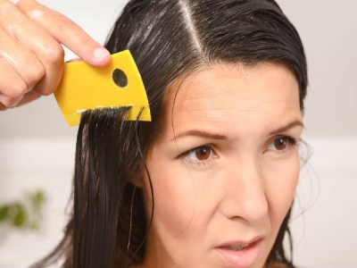 Home Remedies To Treat Head Lice