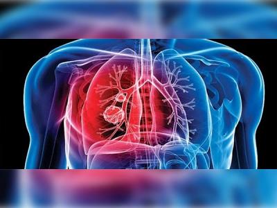 Ayurveda For Pulmonary Tuberculosis