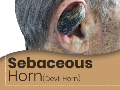 What Is Sebaceous Horn?