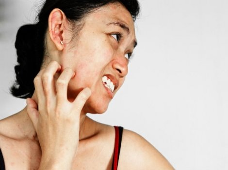 Tips To Fight Redness On Skin In Winter