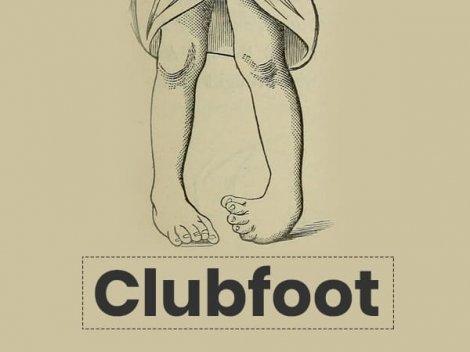 Clubfoot: Causes, Symptoms, Risk Factors, Diagnosis, Treatment And Prevention