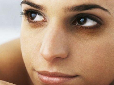 7 Surprising Reasons For Under-Eye Circles
