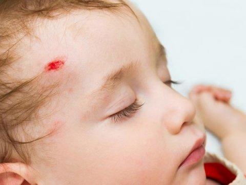 Childhood Head Injury May Up Mental Illness, Mortality Risk