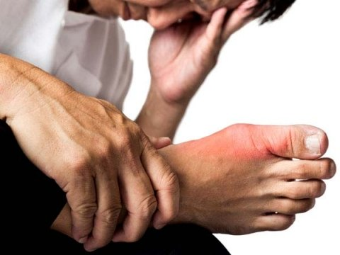 Do You Know What Causes Gout?