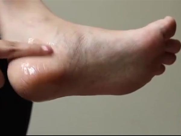 Cracked Heels? Try These Amazing Home Remedies