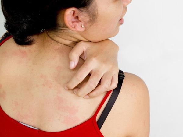 7 Homemade Blends To Get Rid Of Shoulder Acne