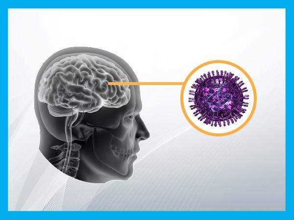 What Causes Encephalitis?