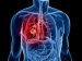 10 Risk Factors Of Lung Cancer