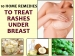 10 Home Remedies To Treat Rashes Under Breast