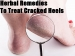 Herbal Remedies To Treat Cracked Heels