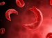 Sickle Cell Anaemia: Types, Causes, Symptoms & Treatment