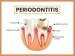 Periodontitis: Symptoms, Causes, Risk factors, Treatment And Prevention
