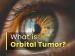 A Neurosurgeon Explains About Orbital Tumors: Diagnosis, Treatment & Management